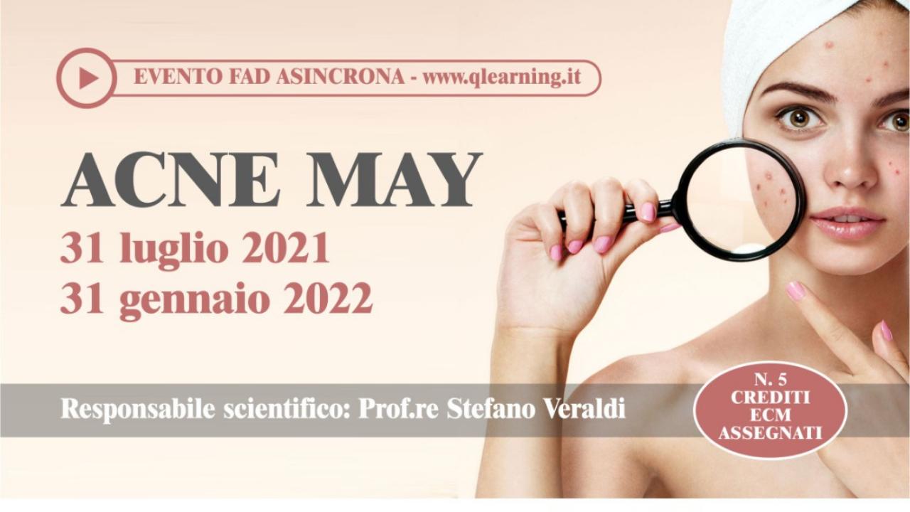 ACNE MAY - fino al 31/01/22 - SO1031 FC